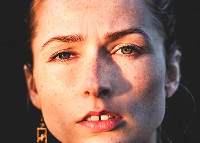 Пигментные пятна на лице причины и лечение